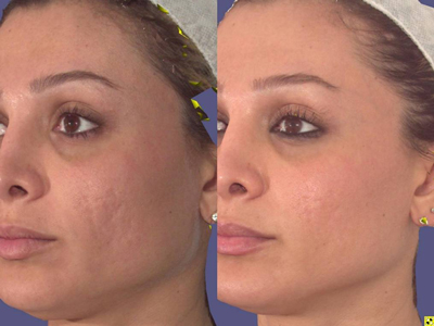 Best Acne Scar Removal Natural