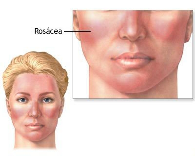Rosacea: Causes, Trigg... Renee Zellweger Syndrome