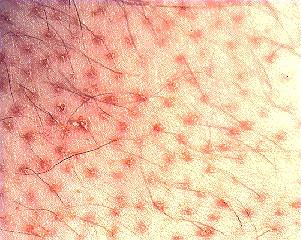 hoe kom ik van schimmelinfectie af